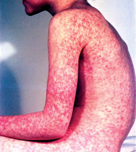 MR16_immunisation-measles
